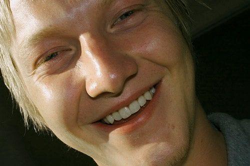 Sunne, hvite tenner er noe mange setter høyt på ønskelista