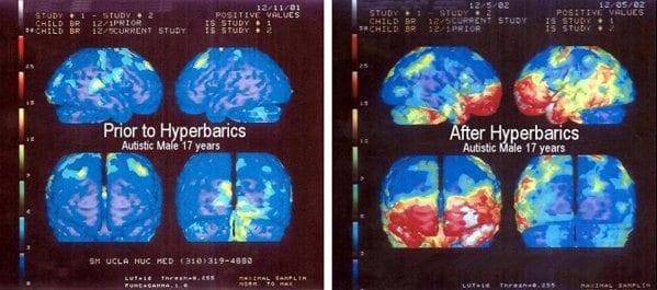 hyperbarics